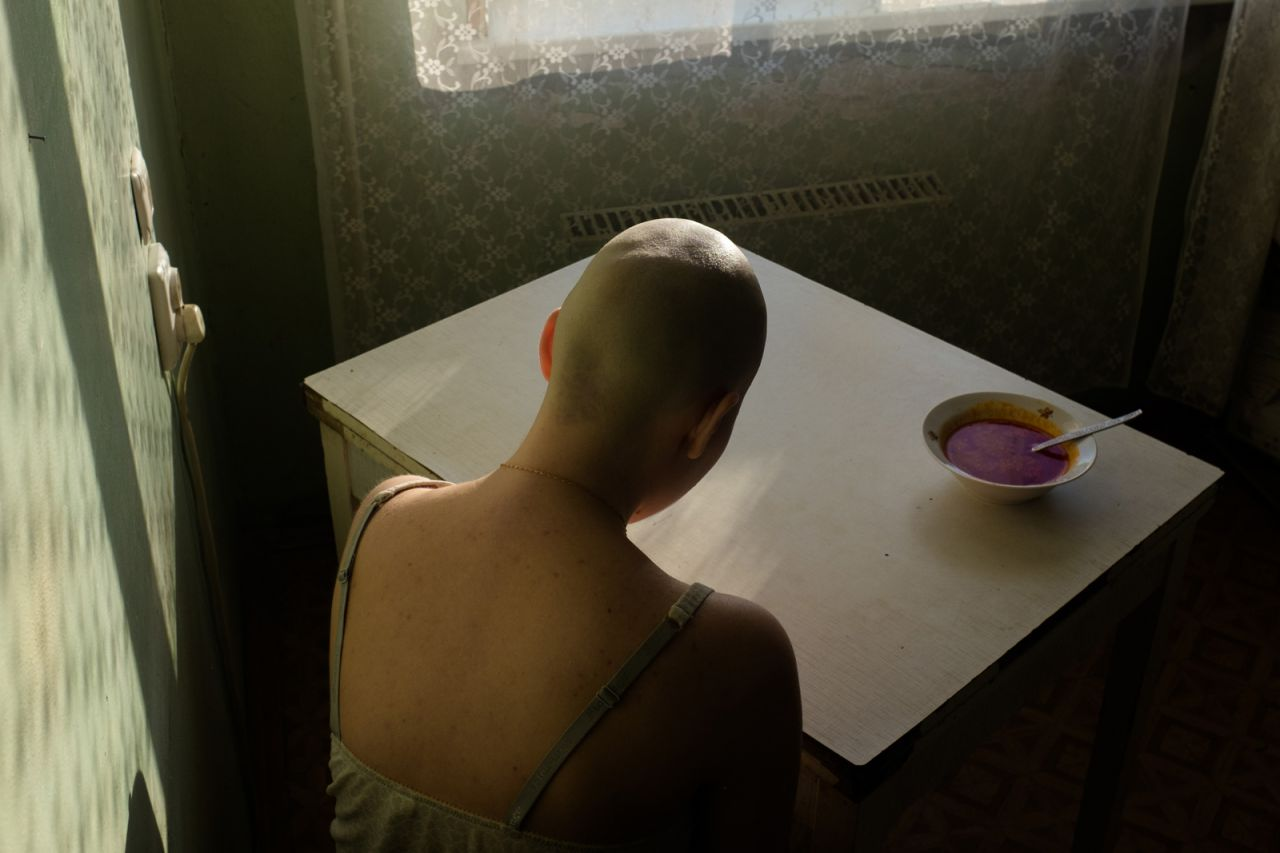 Alyona Kochetkova se sienta en casa, sin poder enfrentarse al borscht (sopa de remolacha), su comida favorita, durante el tratamiento para el cáncer.