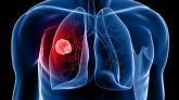 Diagrama del cáncer de pulmón.
