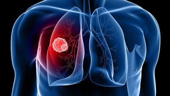 Los casos de cáncer aumentan un 12% en los últimos cuatro años
