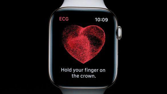 Apple Watch ahora permite hacer un electrocardiograma desde la muñeca