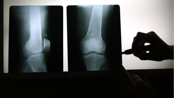 La vitamina D, clave para evitar fracturas por osteoporosis