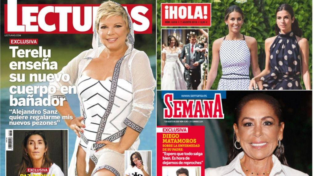 Terelu Campos, protagonista por la venta de su ático de lujo y sus nuevos pezones