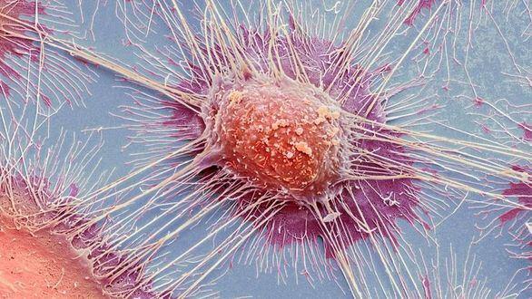 El estudio genómico más completo sobre cáncer revela que puede predecirse