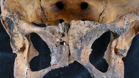 Hallan restos del tratamiento ginecológico más antiguo del que se tiene constancia