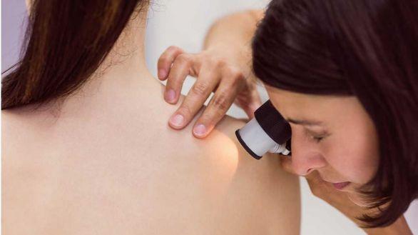 La vitamina B3 protege la piel de los rayos ultravioleta