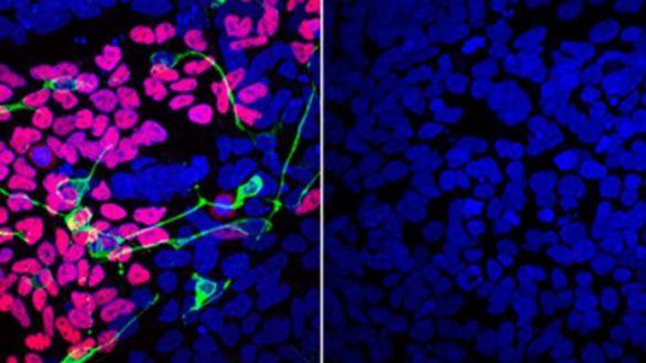 Identificado un nuevo trastorno genético que afecta al cerebro