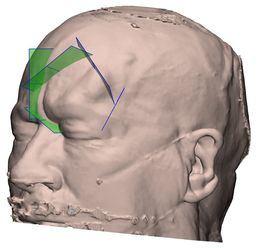 Logran extirpar un tumor muy agresivo en la cabeza considerado inoperable