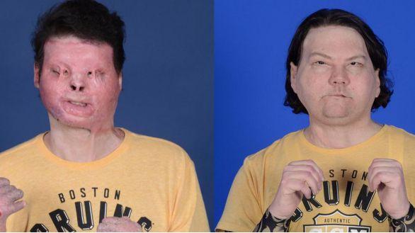 Un hospital de Nueva York concluye con éxito un trasplante de cara y manos
