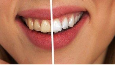 Alertan del peligro del blanqueamiento dental con carbón activado