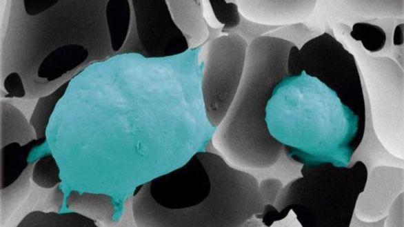 ¿Cómo se hace resistente el cáncer de próstata?