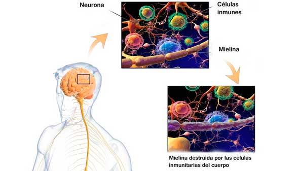 Hallado un nuevo método para el diagnóstico precoz de la esclerosis múltiple