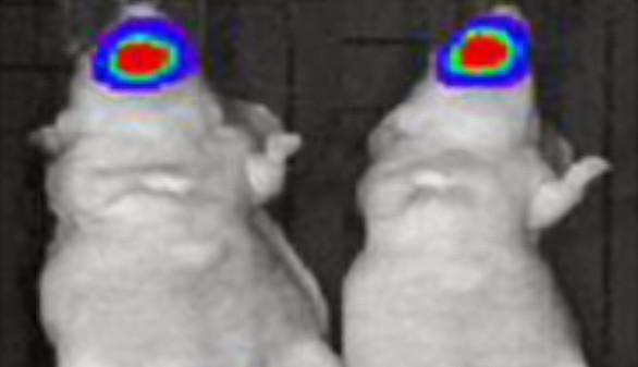 Una nueva molécula inhibe el crecimiento de los tumores de cabeza y cuello