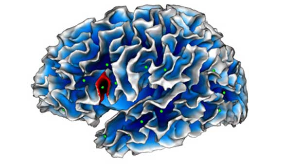 Un pliegue cerebral puede ayudar a diagnosticar el autismo