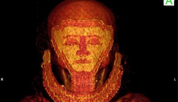 La Universidad de Granada descubre cáncer en momias egipcias de 4.000 años