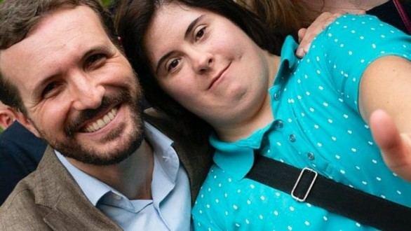 Casado apoya a las personas son síndrome de down: