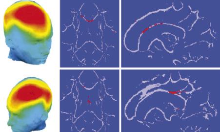 El cerebro de los esquizofrénicos es diferente según el tipo que padecen