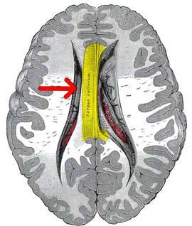 Cuerpo calloso en un cerebro afectado por esquizofrenia. UGR