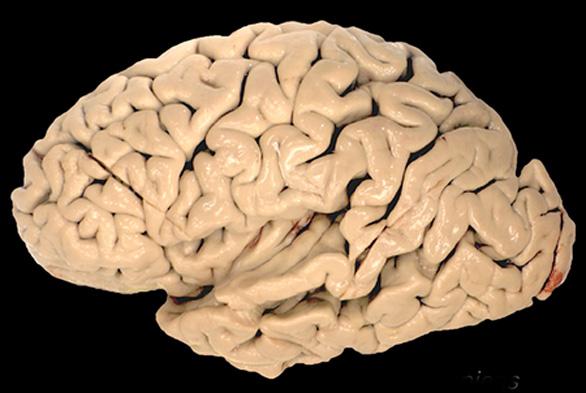 La verdadera 'paleodieta': los carbohidratos y su papel en la evolución del cerebro