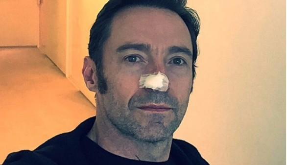 El actor Hugh Jackman, operado de nuevo de cáncer de piel