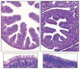Descubierto un gen asociado a un grupo de enfermedades raras