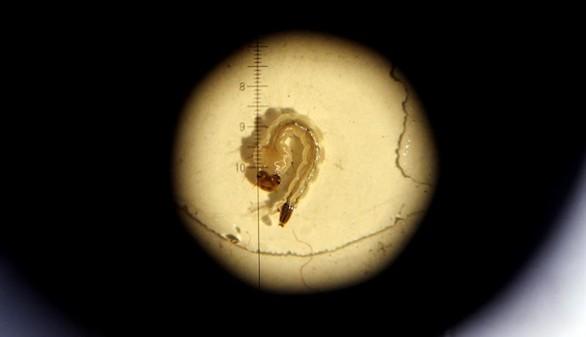 Primer caso en España de un feto con microcefalia por zika