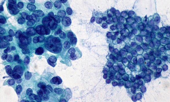Descubierto un nuevo fármaco para el tratamiento del cáncer de páncreas
