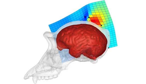 El precúneo, clave para distinguir nuestro cerebro del de un chimpancé