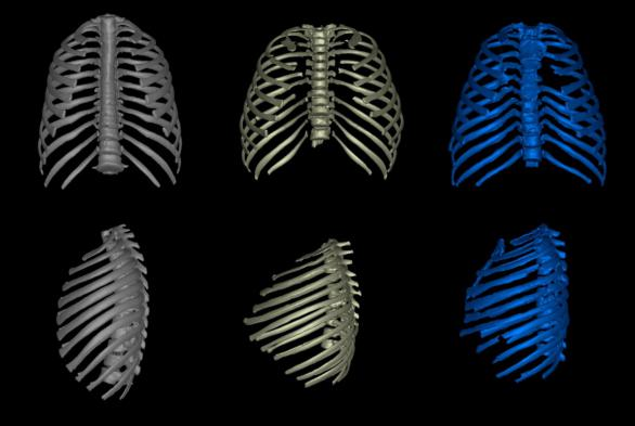 Desvelado el verdadero aspecto del Homo erectus: compacto, achaparrado y robusto