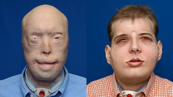 Un bombero recibe en Nueva York el trasplante más completo de cara