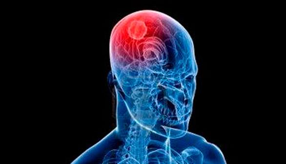 Médicos españoles simplifican el diagnóstico del tumor cerebral